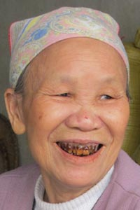 Chewing betel root spots one's teeth red.